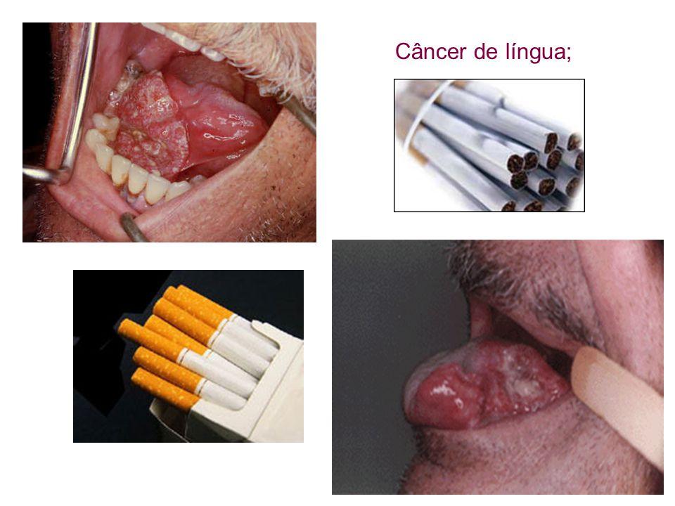 O fumo produz osteoporose: Os ossos, com menos sangue (alimento), tendem a apresentar diminuição de sua massa.