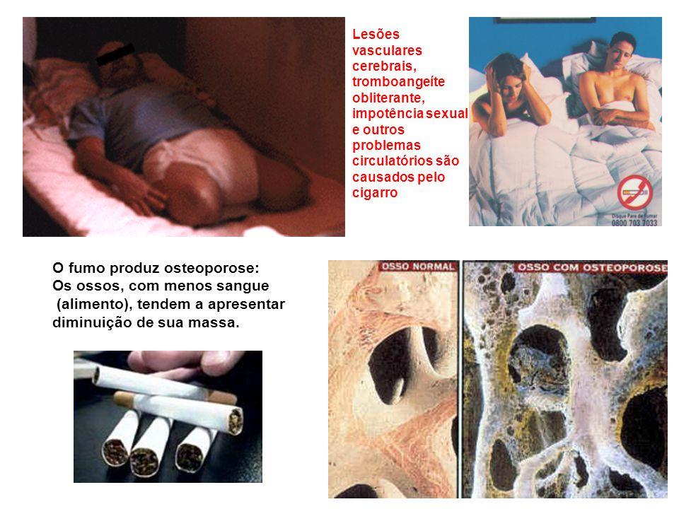O fumo produz osteoporose: Os ossos, com menos sangue (alimento), tendem a apresentar diminuição de sua massa. Lesões vasculares cerebrais, tromboange
