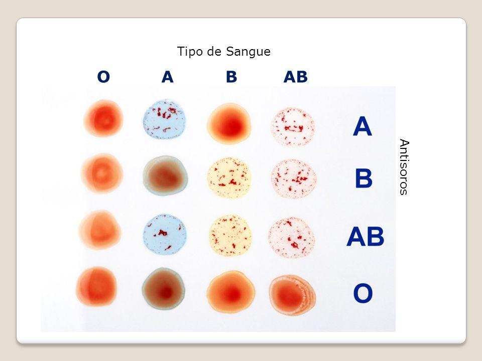 Tipo de Sangue Antisoros OABAB