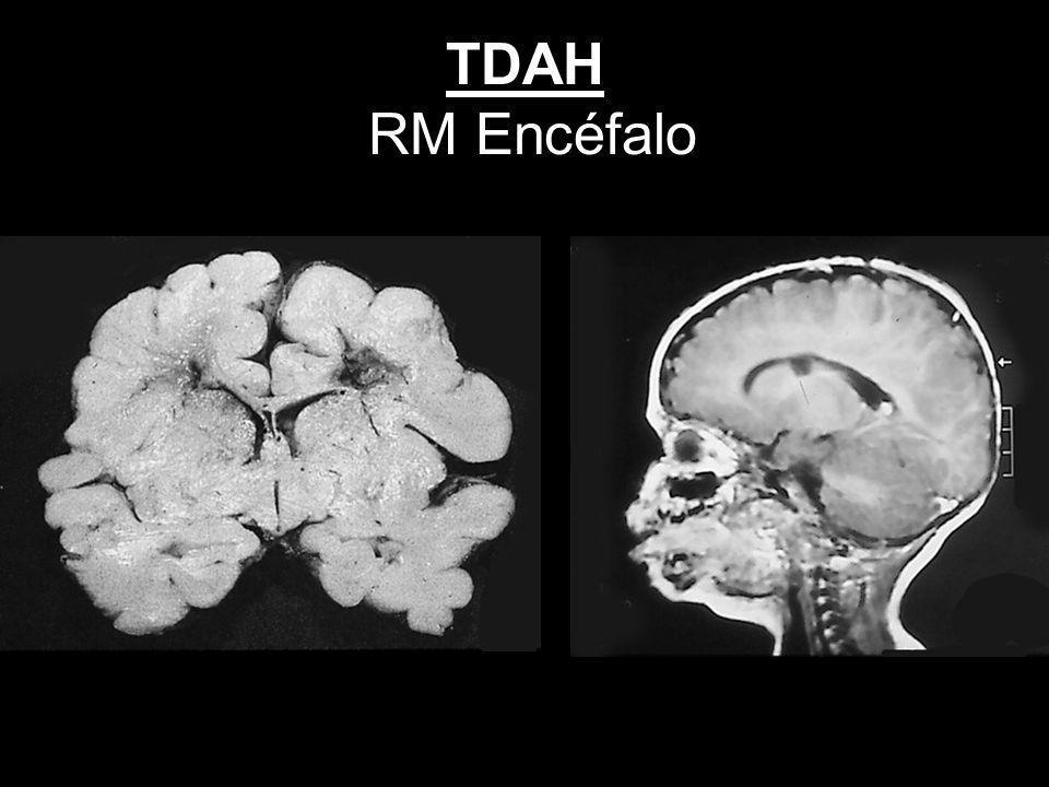 TDAH RM Encéfalo