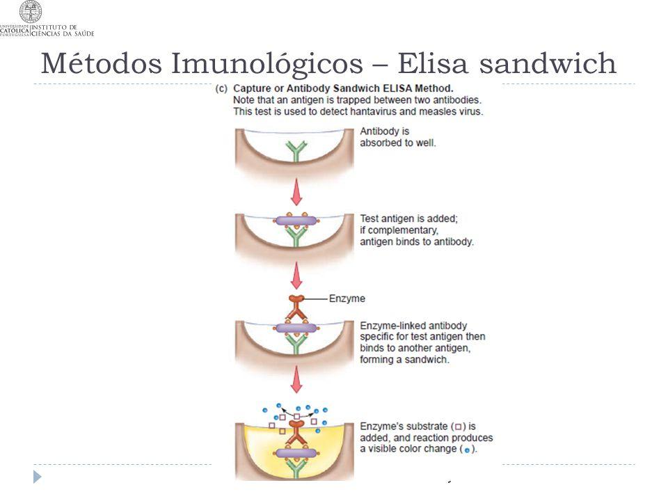 Métodos Imunológicos – Elisa sandwich T6 MJC