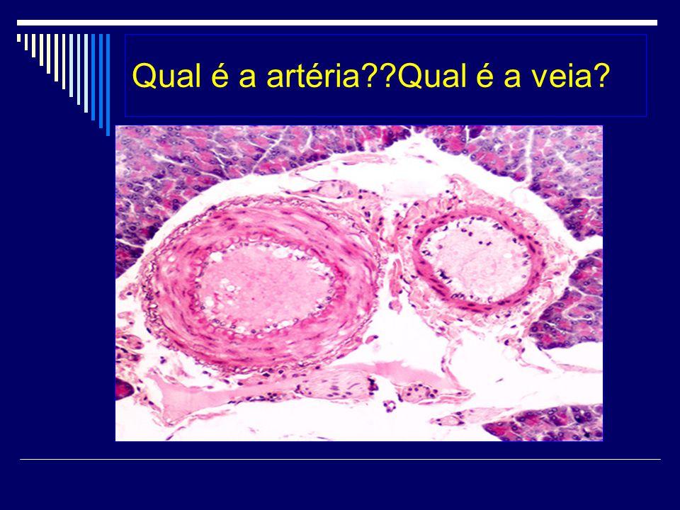 Qual é a artéria??Qual é a veia?