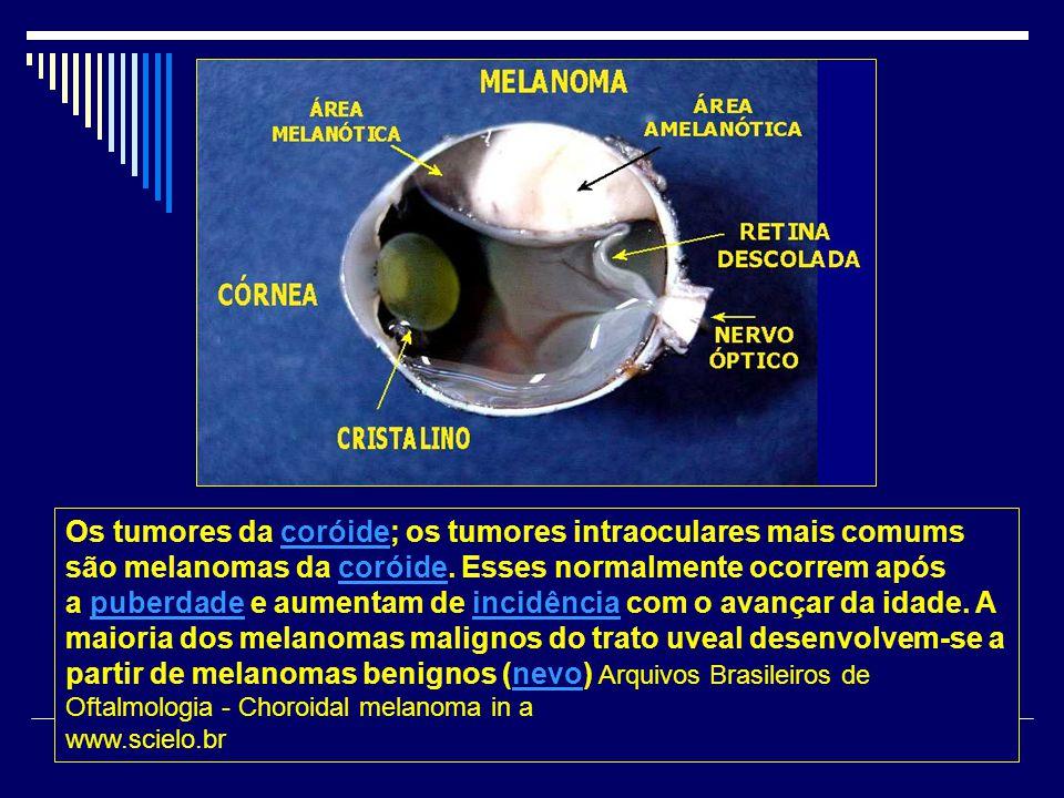 Os tumores da coróide; os tumores intraoculares mais comums são melanomas da coróide. Esses normalmente ocorrem após a puberdade e aumentam de incidên