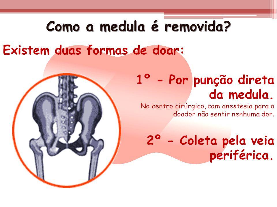 Como a medula é removida? Existem duas formas de doar: 1º - Por punção direta da medula. No centro cirúrgico, com anestesia para o doador não sentir n