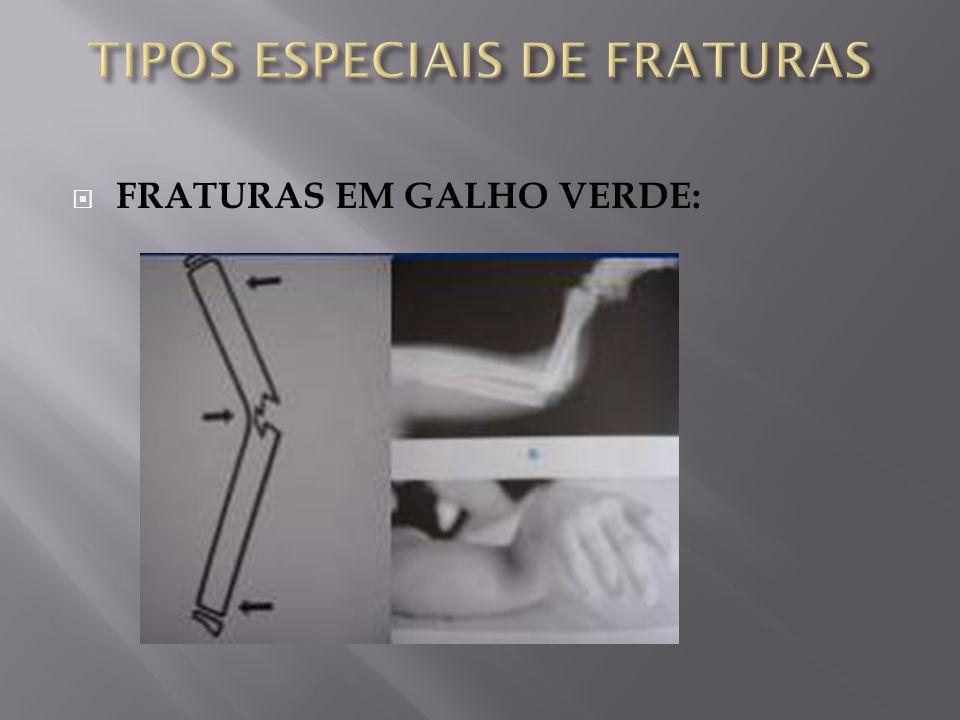 FRATURAS EM GALHO VERDE: