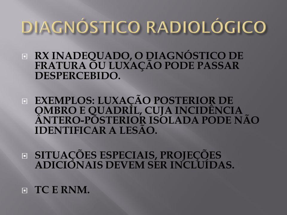 RX INADEQUADO, O DIAGNÓSTICO DE FRATURA OU LUXAÇÃO PODE PASSAR DESPERCEBIDO.