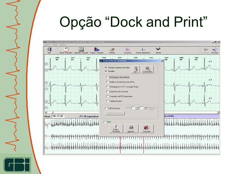 Opção Dock and Print