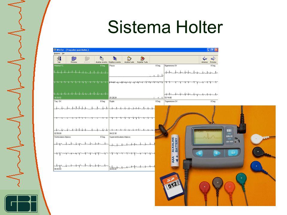 WinTer – Programa de Análise Holter 3 canais Análise de arritmias preciso Análise de marcapassos Apnea do sonho Variabilidade da freqüência cardíaca Turbulência Opção de Dock and Print