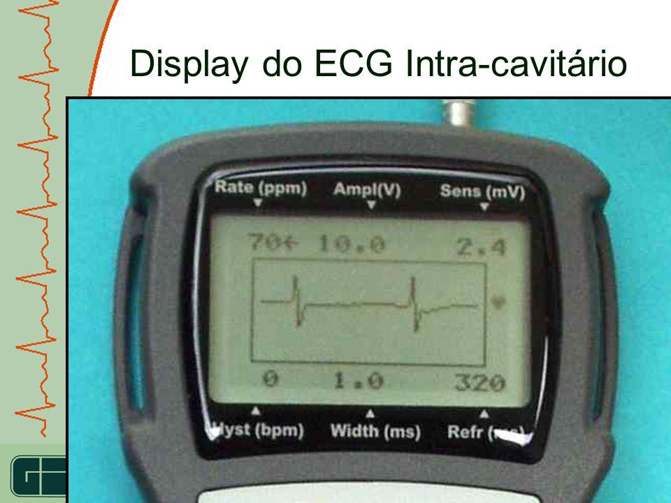 IDEAL FOR RESEARCH USE IDEAL PARA A PESQUISA CIENTIFICA Display do ECG Intra-cavitário Os traçados do ECG podem ser gravados na memória, e podem ser t