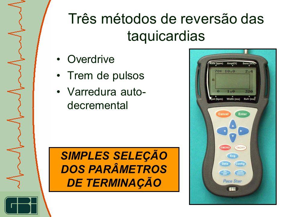 SIMPLES SELEÇÃO DOS PARÂMETROS DE TERMINAÇÃO Três métodos de reversão das taquicardias Overdrive Trem de pulsos Varredura auto- decremental