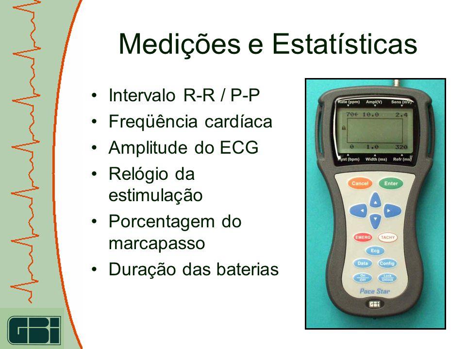 Medições e Estatísticas Intervalo R-R / P-P Freqüência cardíaca Amplitude do ECG Relógio da estimulação Porcentagem do marcapasso Duração das baterias