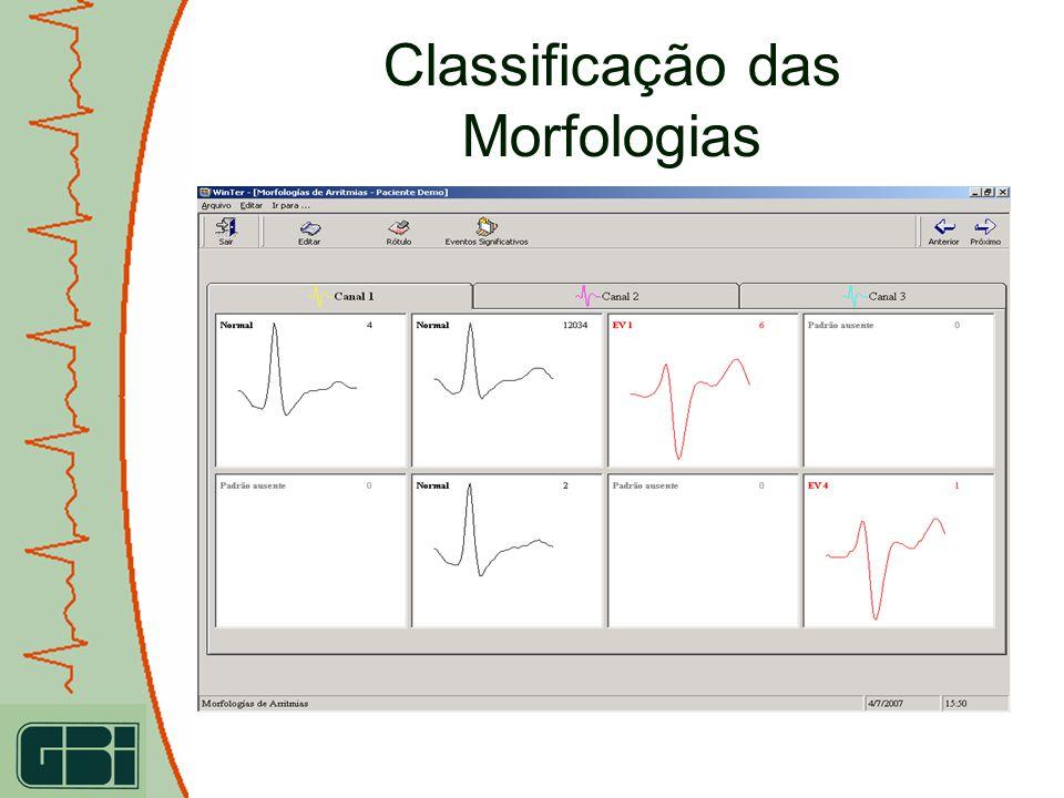 Sistema ECG-PS