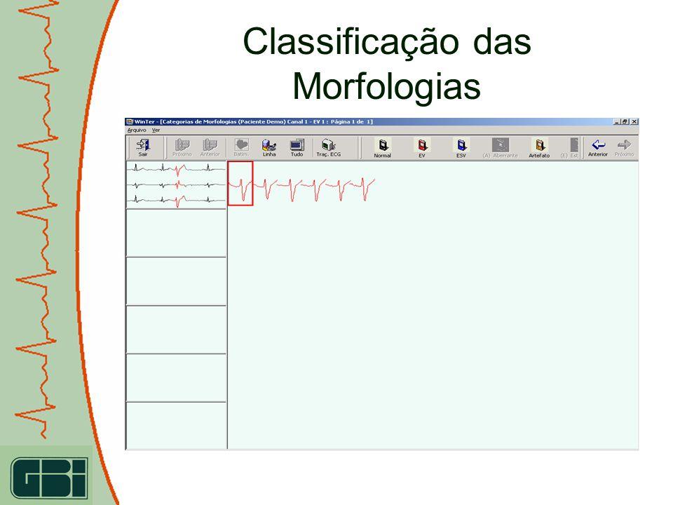 IDEAL FOR RESEARCH USE IDEAL PARA A PESQUISA CIENTIFICA Display do ECG Intra-cavitário Os traçados do ECG podem ser gravados na memória, e podem ser transferidos a um PC posteriormente