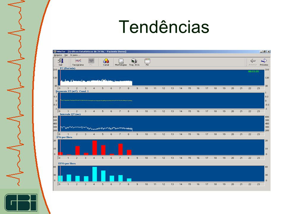 Modelo de Impressão do ECG – Visualização Previa