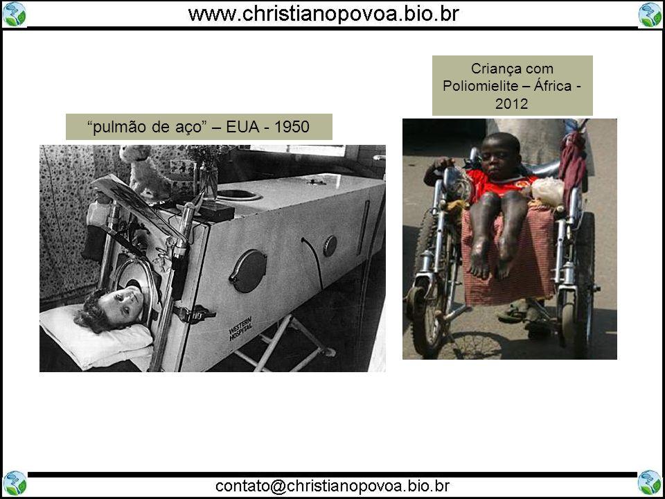 pulmão de aço – EUA - 1950 Criança com Poliomielite – África - 2012