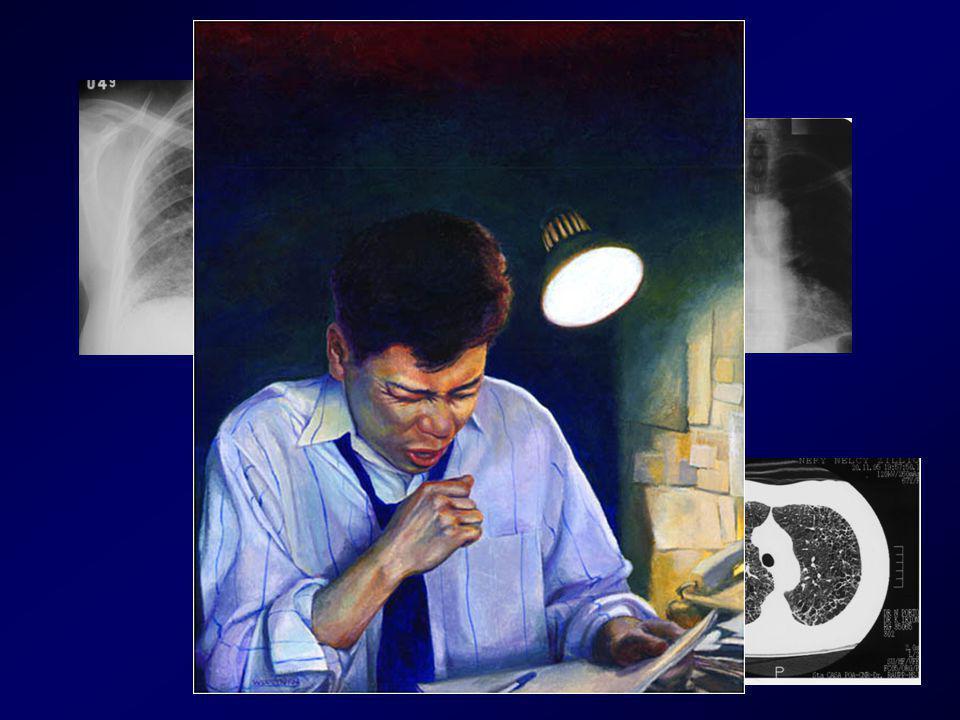Codeína : muito utilizado sem evidência de eficácia sem evidência de eficácia Opiáceos orais : empregados em tosse intratável end-stage disease end-stage disease