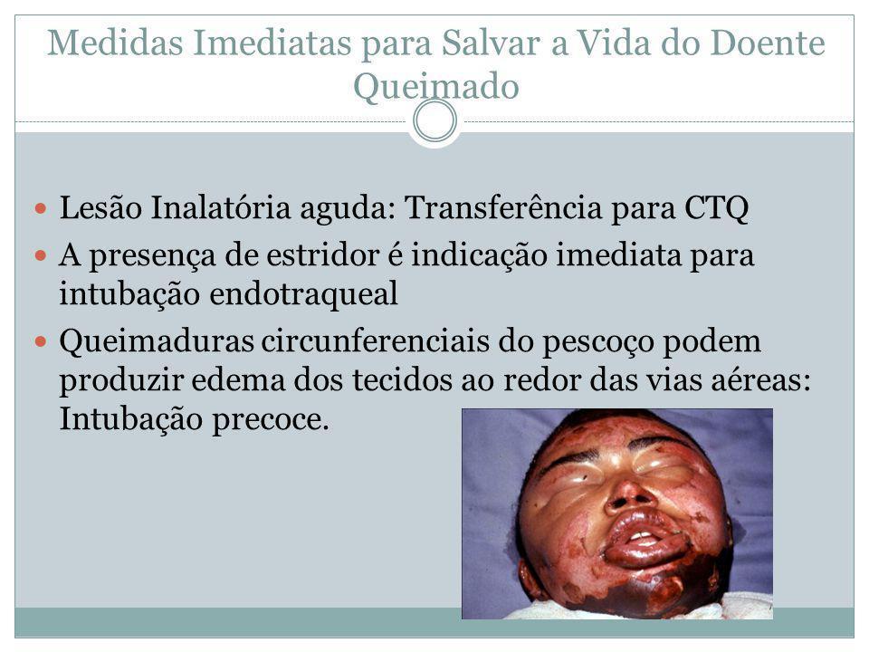 Medidas Imediatas para Salvar a Vida do Doente Queimado Lesão Inalatória aguda: Transferência para CTQ A presença de estridor é indicação imediata par