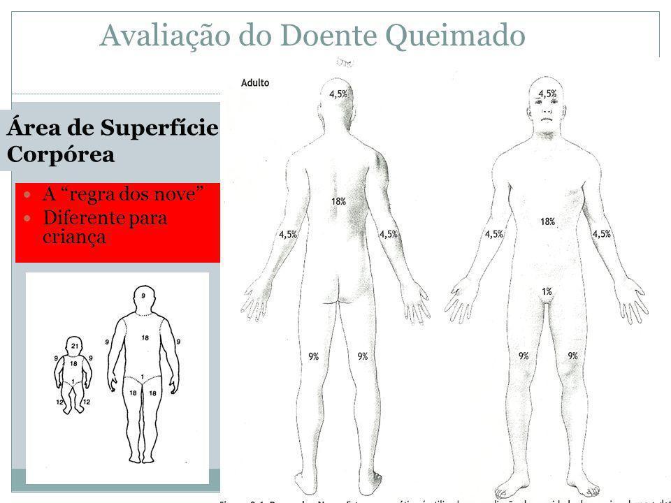 Avaliação do Doente Queimado A regra dos nove Diferente para criança Área de Superfície Corpórea