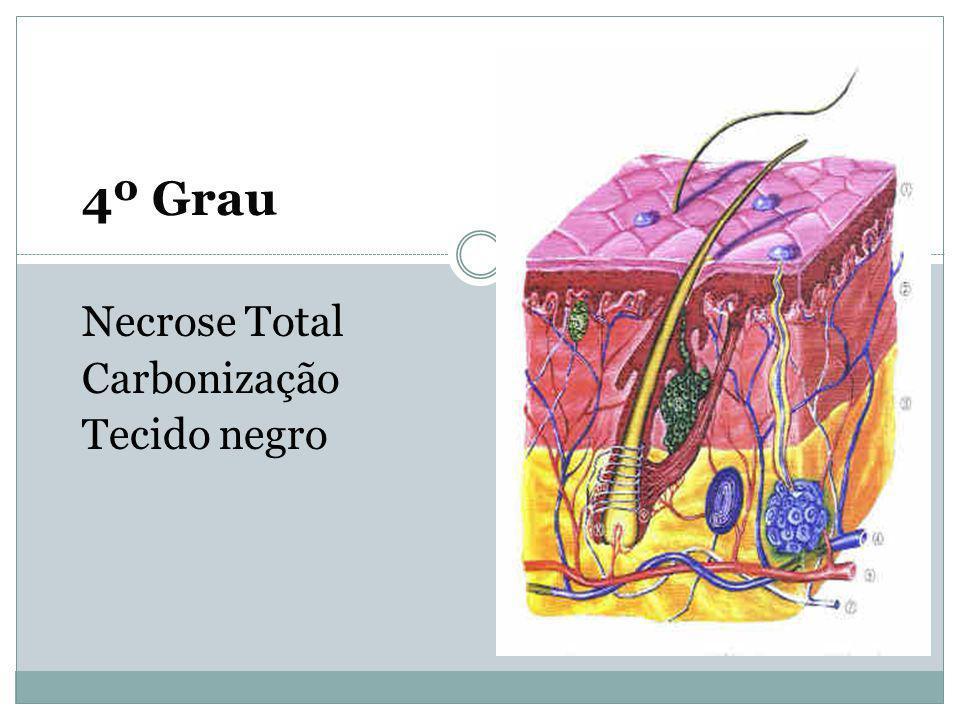 4º Grau Necrose Total Carbonização Tecido negro