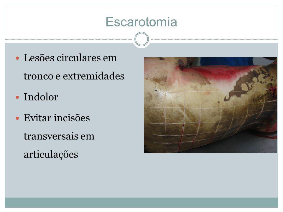 Escarotomia Lesões circulares em tronco e extremidades Indolor Evitar incisões transversais em articulações