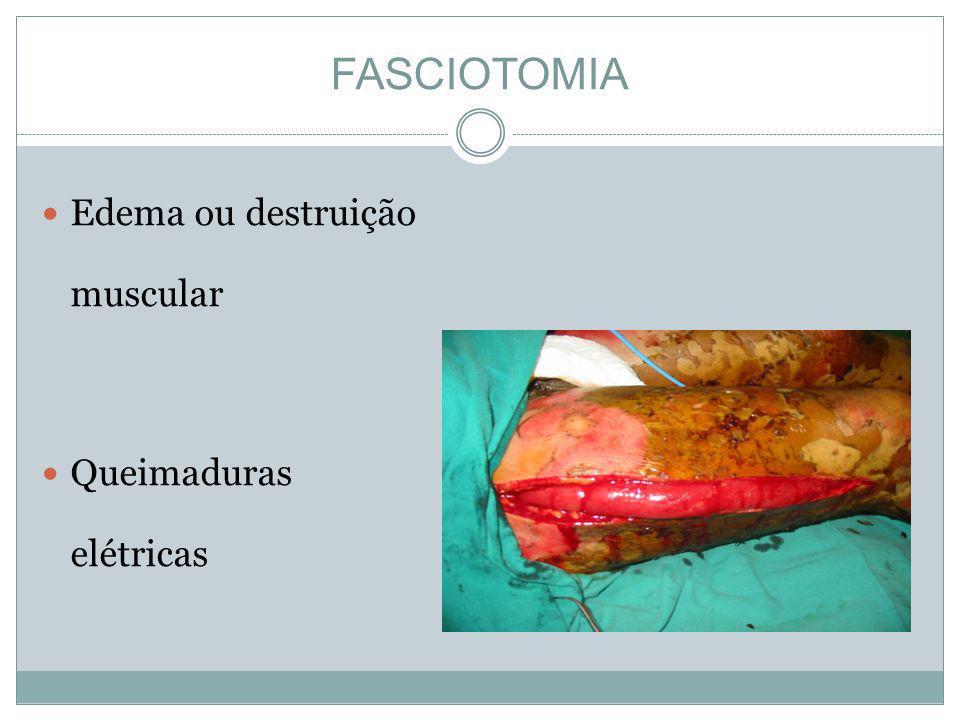 FASCIOTOMIA Edema ou destruição muscular Queimaduras elétricas