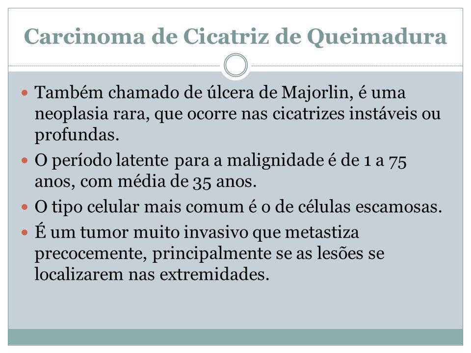 Carcinoma de Cicatriz de Queimadura Também chamado de úlcera de Majorlin, é uma neoplasia rara, que ocorre nas cicatrizes instáveis ou profundas. O pe