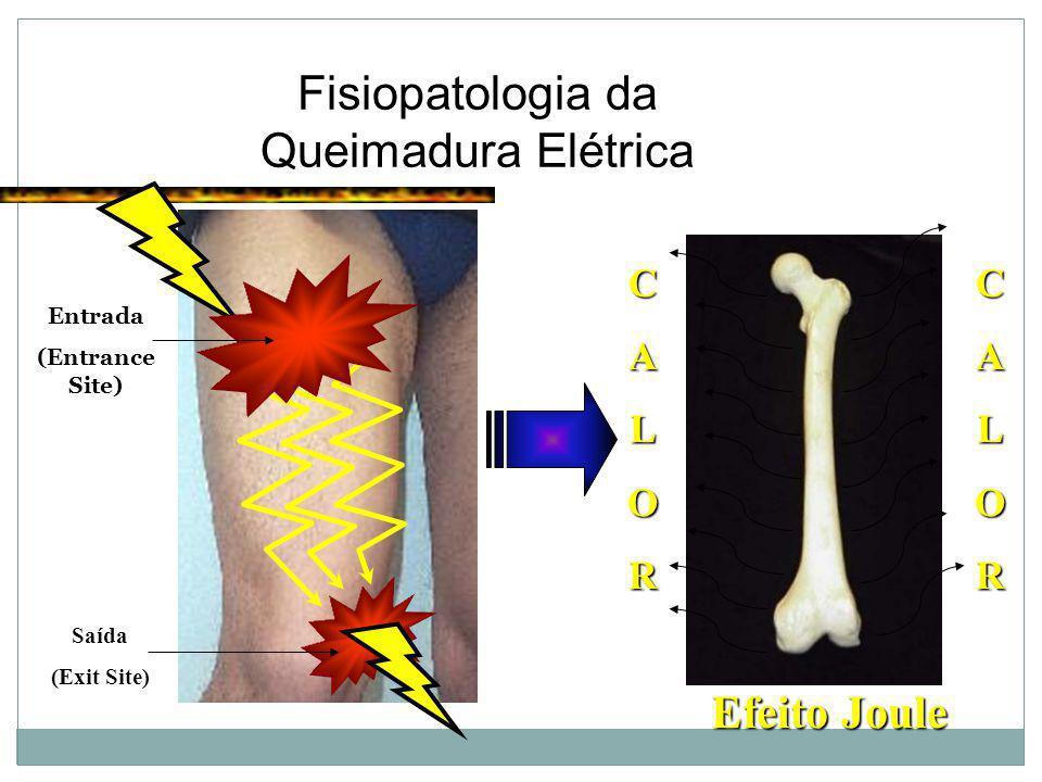 Fisiopatologia da Queimadura Elétrica Entrada (Entrance Site) Saída (Exit Site) C A L O R C A L O R Efeito Joule