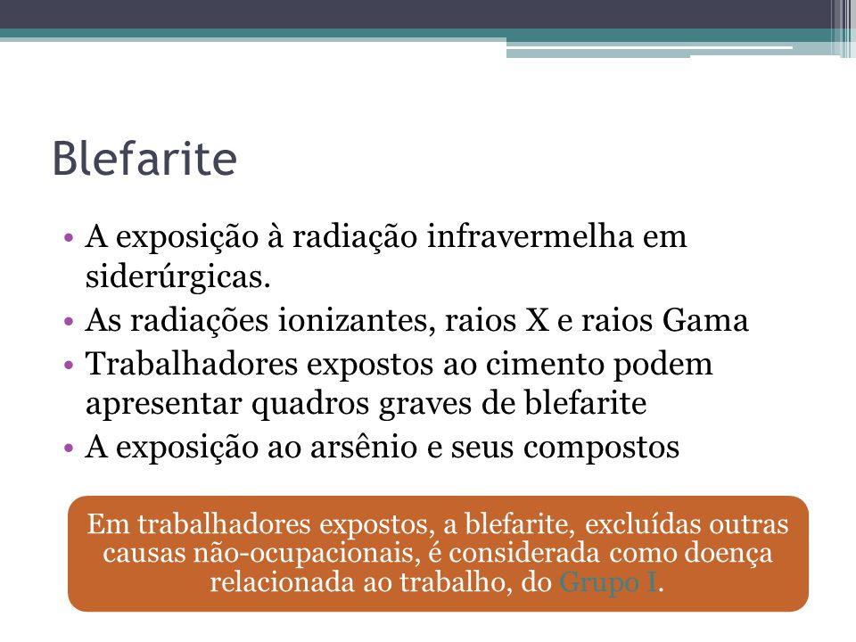 Blefarite A exposição à radiação infravermelha em siderúrgicas.