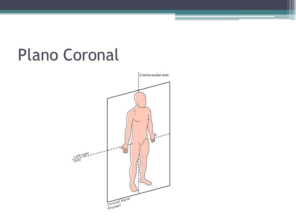 Plano Coronal