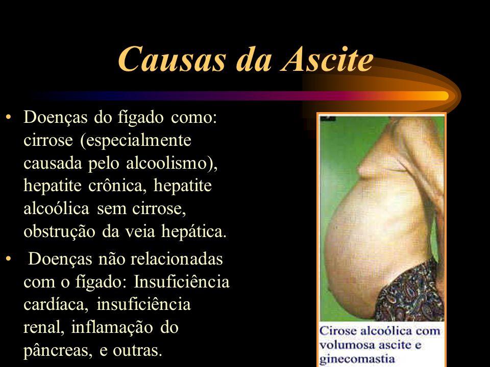 Causas da Ascite Doenças do fígado como: cirrose (especialmente causada pelo alcoolismo), hepatite crônica, hepatite alcoólica sem cirrose, obstrução