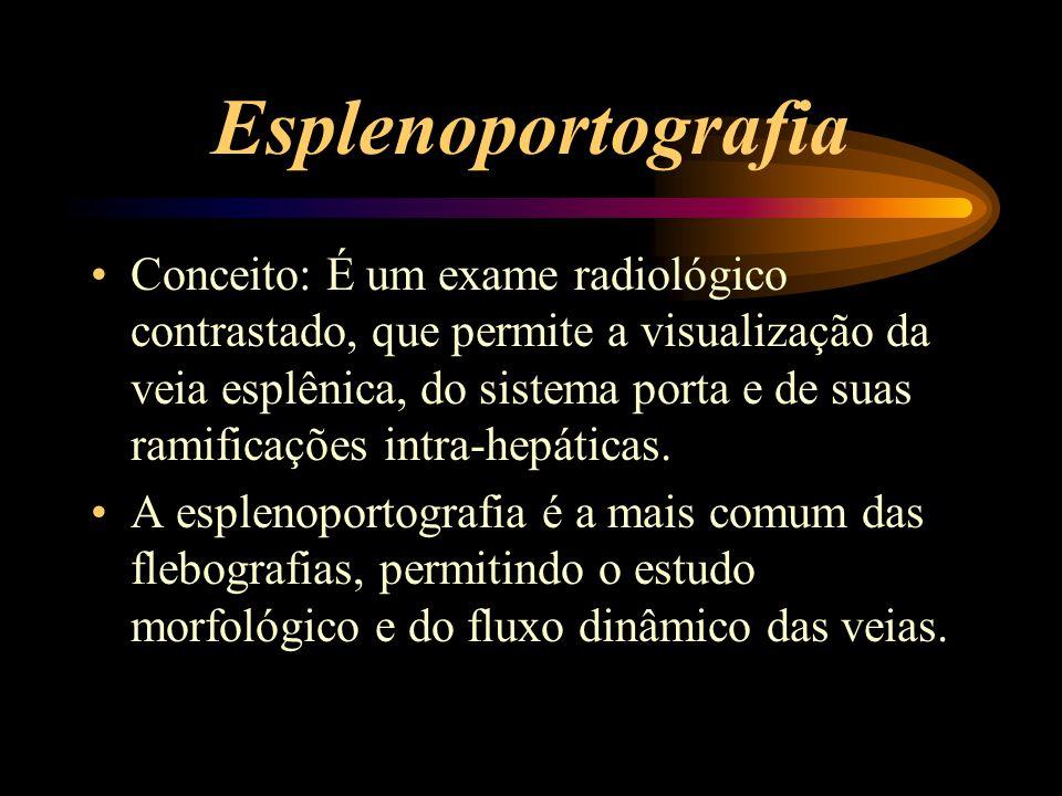 Esplenoportografia Conceito: É um exame radiológico contrastado, que permite a visualização da veia esplênica, do sistema porta e de suas ramificações