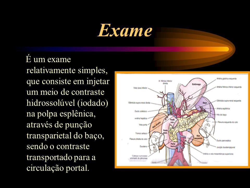 Exame É um exame relativamente simples, que consiste em injetar um meio de contraste hidrossolúvel (iodado) na polpa esplênica, através de punção tran