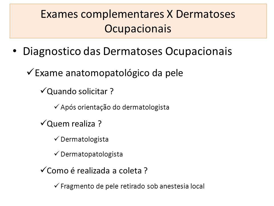 Exames complementares X Dermatoses Ocupacionais Diagnostico das Dermatoses Ocupacionais Exame anatomopatológico da pele Quando solicitar ? Após orient