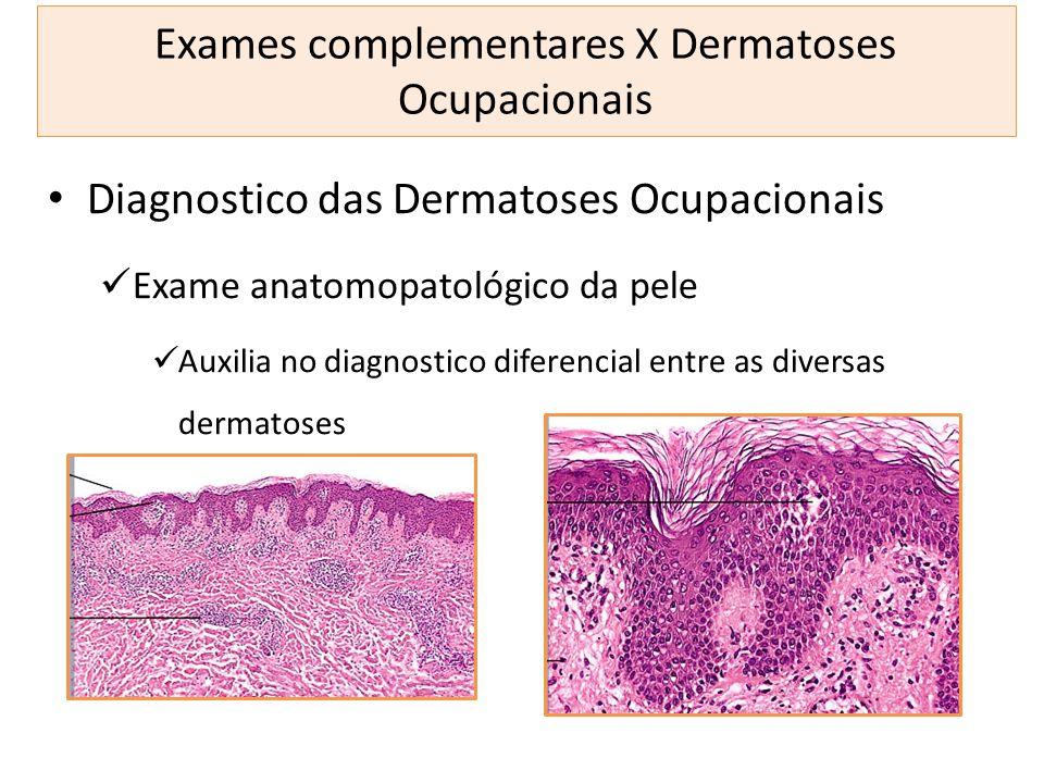 Exames complementares X Dermatoses Ocupacionais Diagnostico das Dermatoses Ocupacionais Exame anatomopatológico da pele Auxilia no diagnostico diferen