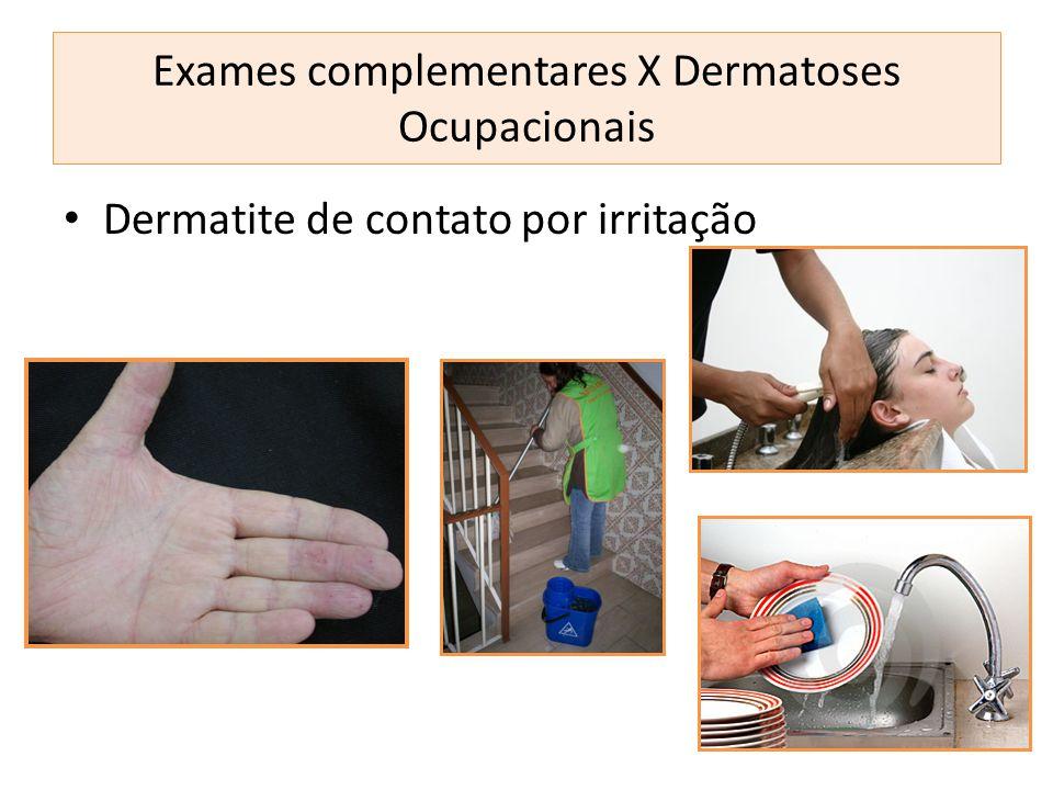Dermatite de contato por irritação Exames complementares X Dermatoses Ocupacionais