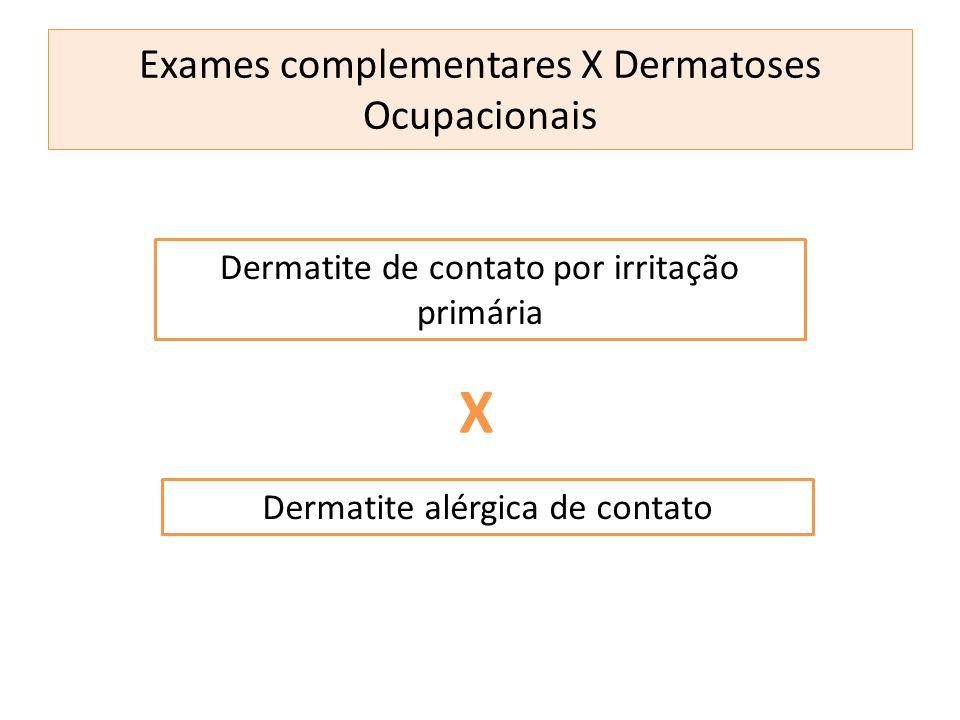 Dermatite de contato por irritação primária Dermatite alérgica de contato X