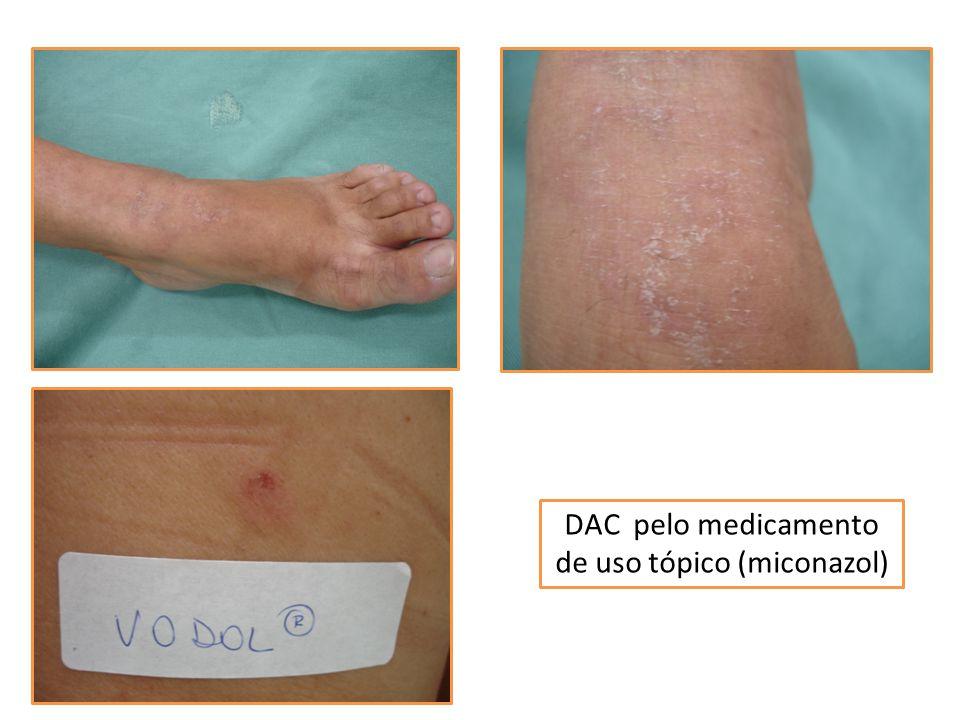 DAC pelo medicamento de uso tópico (miconazol)