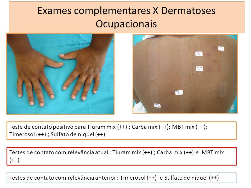 Exames complementares X Dermatoses Ocupacionais Teste de contato positivo para Tiuram mix (++) ; Carba mix (++); MBT mix (++); Timerosol (++) ; Sulfat