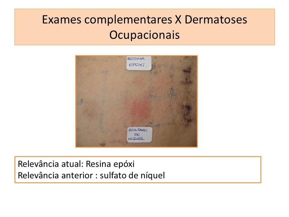 Relevância atual: Resina epóxi Relevância anterior : sulfato de níquel Exames complementares X Dermatoses Ocupacionais