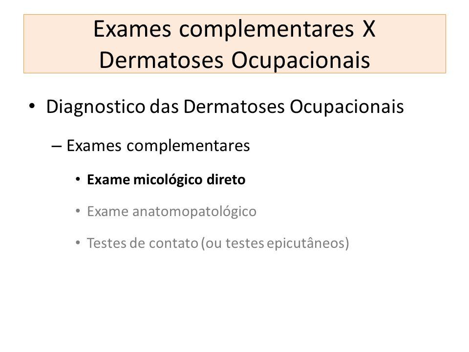 Exames complementares X Dermatoses Ocupacionais Diagnostico das Dermatoses Ocupacionais – Exames complementares Exame micológico direto Exame anatomop