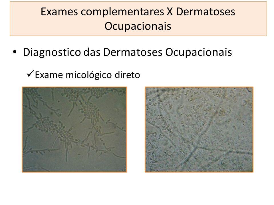 Exames complementares X Dermatoses Ocupacionais Diagnostico das Dermatoses Ocupacionais Exame micológico direto