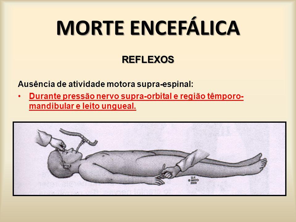 MORTE ENCEFÁLICA REFLEXOS Ausência de atividade motora supra-espinal: Durante pressão no nervo supra-orbital e compressa têmporo-mandibular.