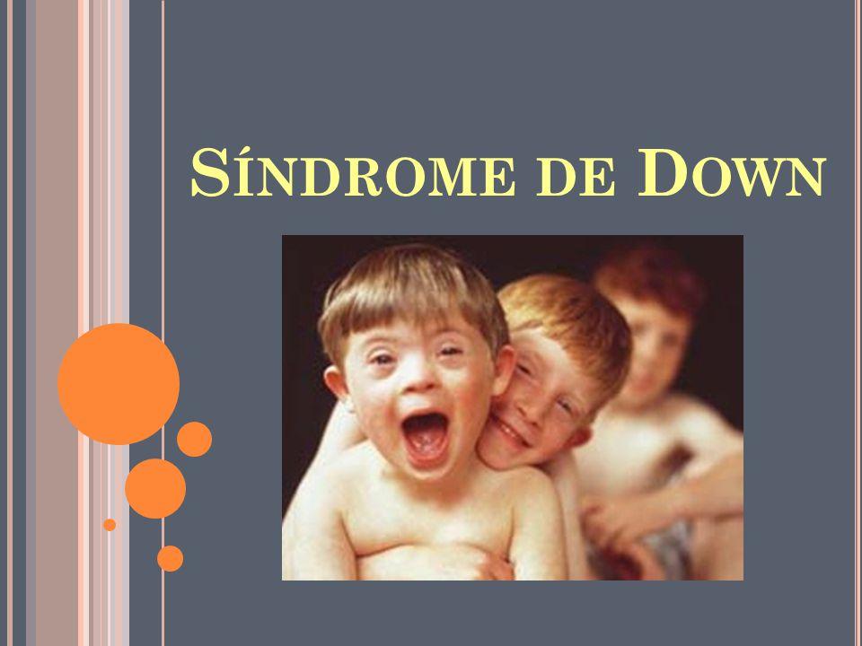 S ÍNDROME DE D OWN
