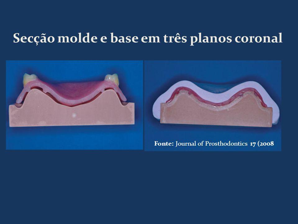 Secção molde e base em três planos coronal Fonte: Journal of Prosthodontics 17 (2008