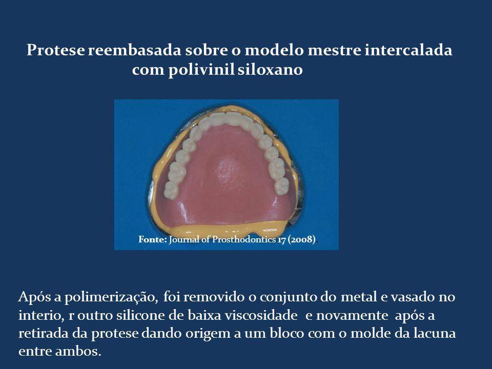 Protese reembasada sobre o modelo mestre intercalada com polivinil siloxano Fonte: Journal of Prosthodontics 17 (2008). Após a polimerização, foi remo