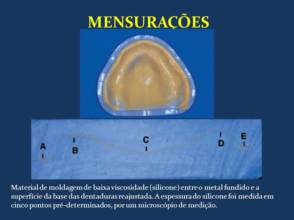 MENSURAÇÕES Material de moldagem de baixa viscosidade (silicone) entre o metal fundido e a superfície da base das dentaduras reajustada. A espessura d