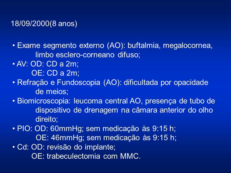 18/09/2000(8 anos) Exame segmento externo (AO): buftalmia, megalocornea, limbo esclero-corneano difuso; AV: OD: CD a 2m; OE: CD a 2m; Refração e Fundo