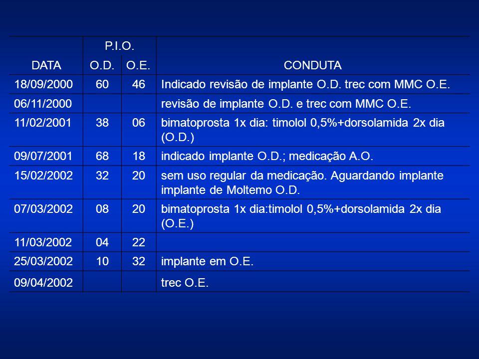 DATA P.I.O. CONDUTA O.D.O.E. 18/09/20006046Indicado revisão de implante O.D. trec com MMC O.E. 06/11/2000revisão de implante O.D. e trec com MMC O.E.