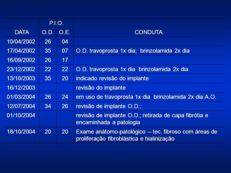 DATA P.I.O. CONDUTA O.D.O.E. 10/04/20022604 17/04/20023507O.D. travoprosta 1x dia; brinzolamida 2x dia 16/09/20022617 23/12/200222 O.D. travoprosta 1x