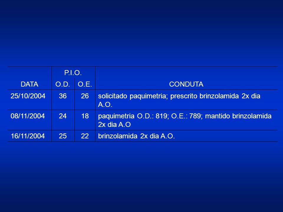 DATA P.I.O. CONDUTA O.D.O.E. 25/10/20043626solicitado paquimetria; prescrito brinzolamida 2x dia A.O. 08/11/20042418paquimetria O.D.: 819; O.E.: 789;